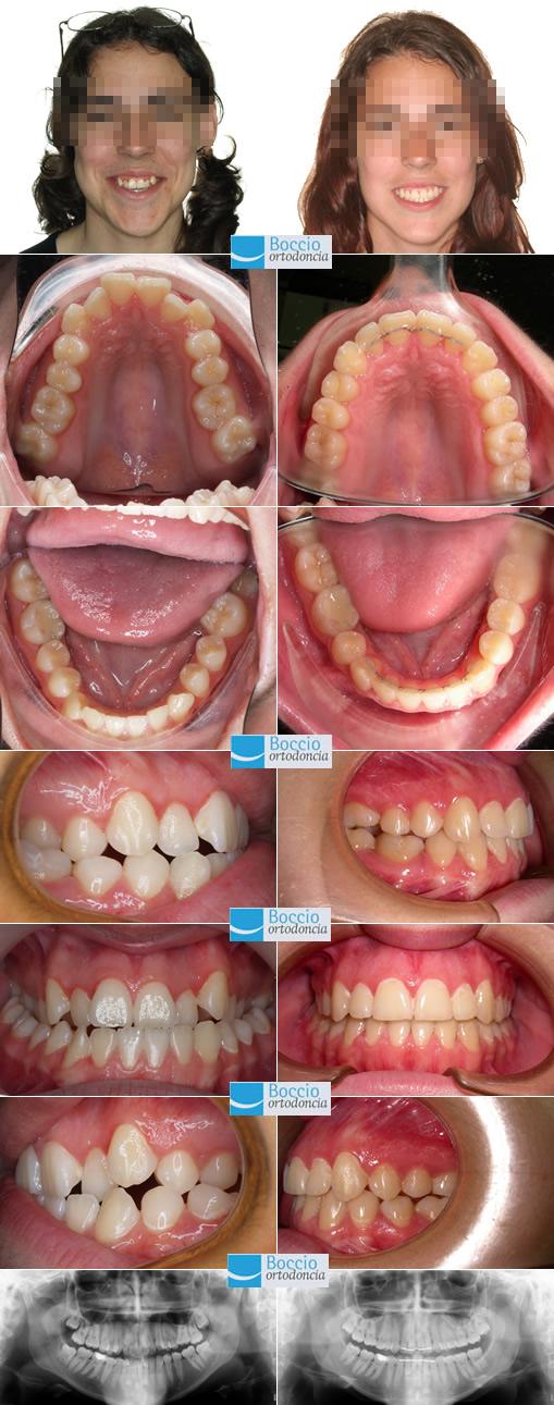Casos ortodoncia adultos en Huelva